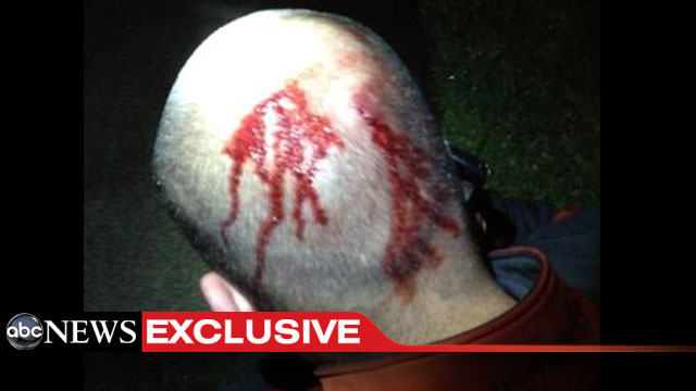George Zimmerman Head SC If Zimmermans Head is Bloody, Charges Shouldnt Have Been Filed