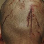 George Zimmerman head