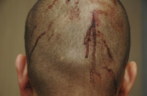 George Zimmerman head 300x197 New Bloody Photos Detail More of George Zimmermans Injuries