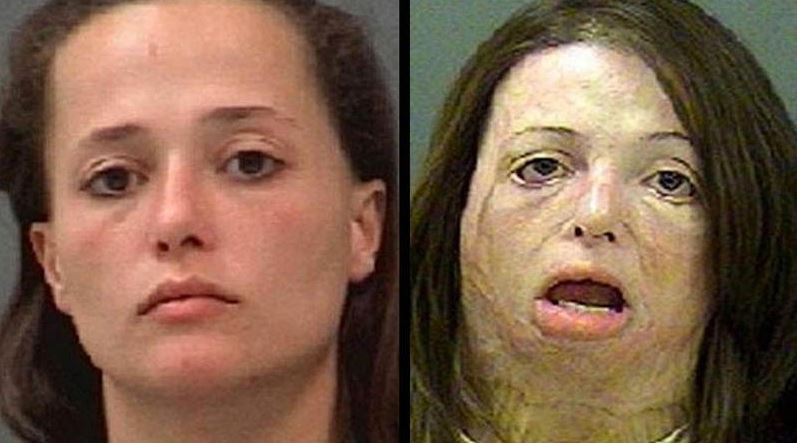 Shocking: These Images Will Make Sure You Never Ever Use Meth...