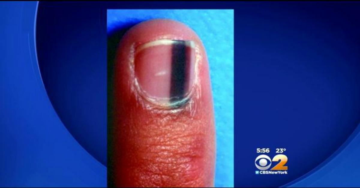 PICTURE: Woman Notices Bizarre Black Stripe Under Fingernail… The ...