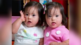 Identical twins with Down syndrome.