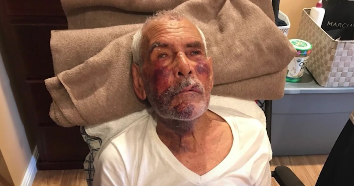 Media Reports Racist Brick Attack on Hispanic Man, Buries Race of Attacker