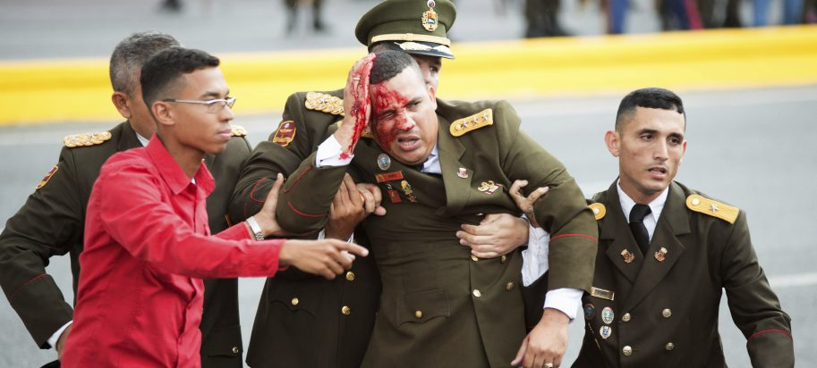 In this photo released by China's Xinhua News Agency, an uniformed official bleeds from the head following an incident during a speech by Venezuela's President Nicolas Maduro in Caracas, Venezuela, Saturday, Aug. 4, 2018.