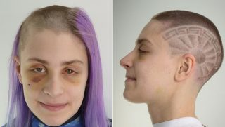 Before and after pictures of domestic assault victim.