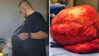 Man Has 77-Pound Tumor