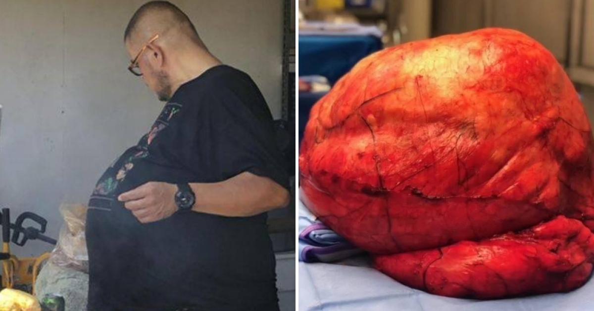Man Has 77-Pound Tumor