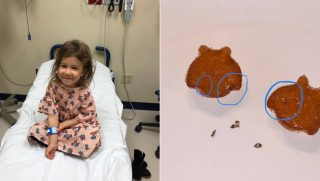 Toddler in a hospital, left, and gummy vitamins with metal in them, right.