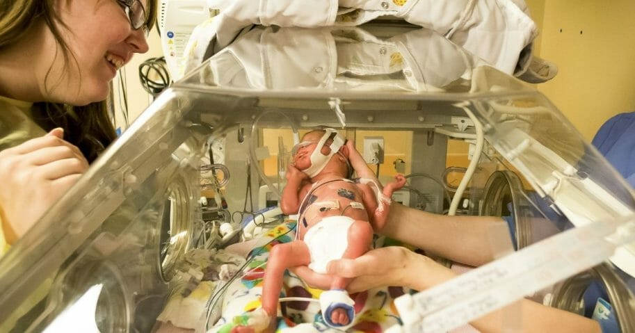 Stock image of a premature baby being cared for.
