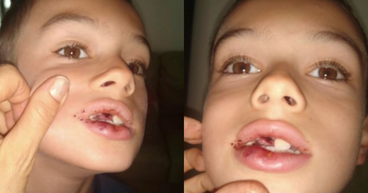 Another Day in De Blasio's NYC as Homeless Man Knocks 7-Year-Old's Teeth Out
