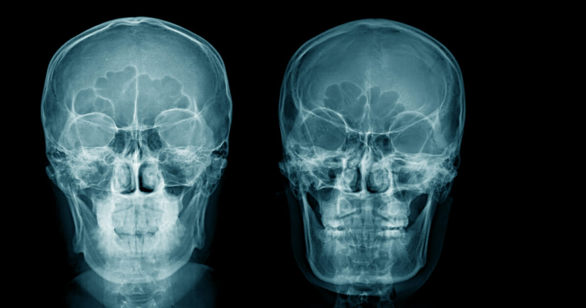An Australia man's past decisions came back to haunt him after drugs that he tried to smuggle up his nostril stayed lodged in his body for a staggering 18 years. The image above is a stock photo of an x-ray of a head.