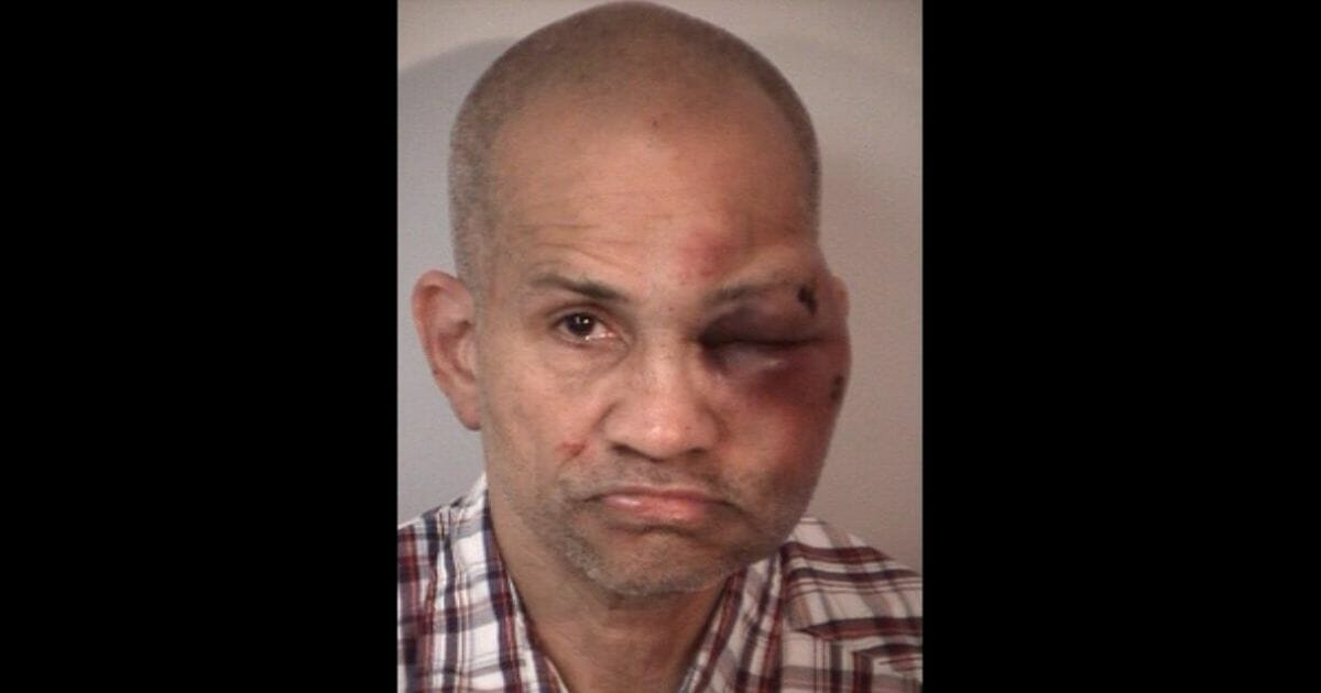 Alleged pedophile Mark Stanley, seen with injuries.