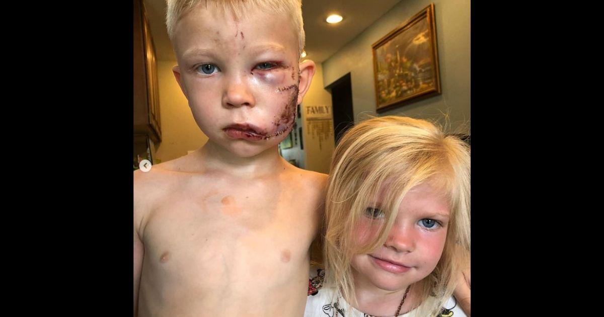 Boy-stitches.jpg