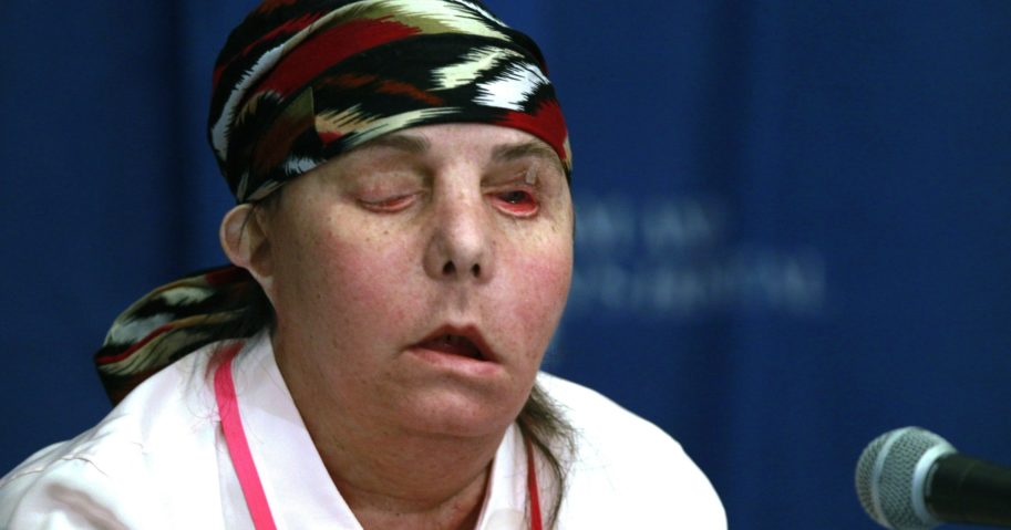 In this May 1, 2013, file photo, Carmen Blandin Tarleton speaks at Brigham and Women's Hospital in Boston following a face transplant. In July 2020, Tarleton became the first American and only the second person globally to undergo a second face transplant procedure after her first transplant failed.