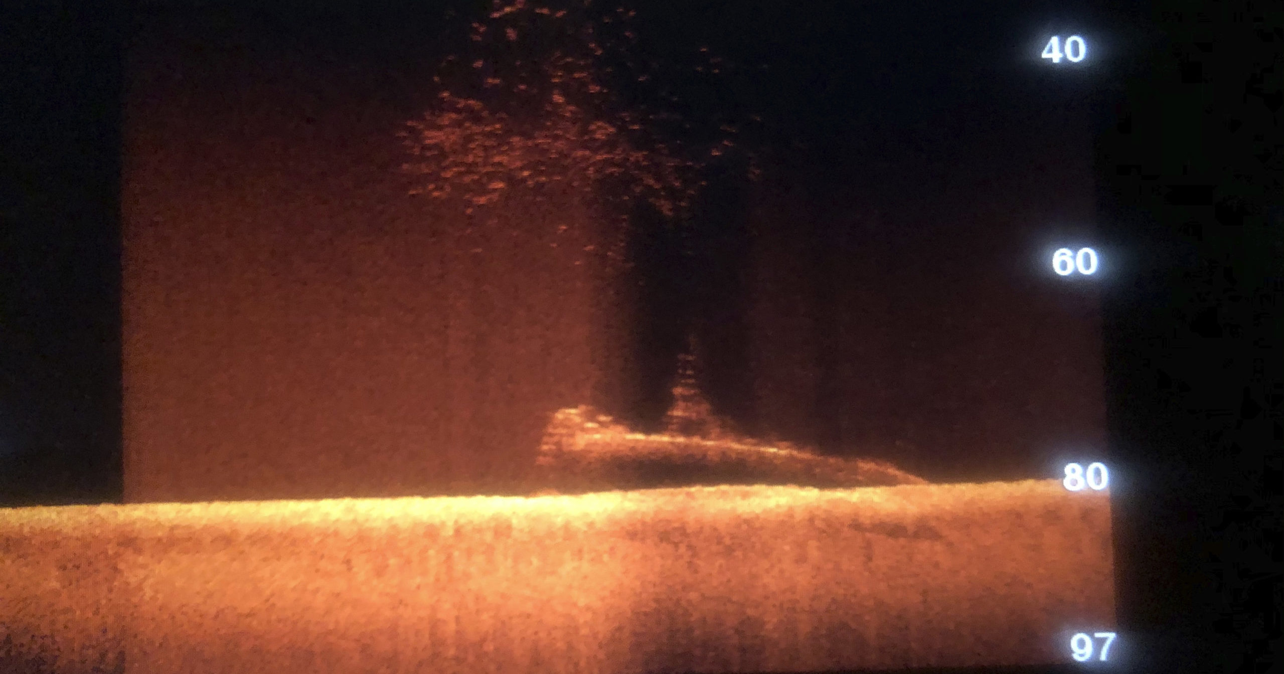 An image on a sonar screen shows a silhouette of a submarine lying on the ocean floor in the Strait of Malacca on Oct. 21, 2019. Divers have found what they believe is the wreck of a US Navy submarine lost 77 years ago in Southeast Asia.