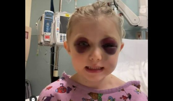 Brooklynn, 3, of Parker, Texas, who ran in front of a galloping horse who tried to avoid her but still kicked her in the head.