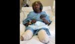 Jummai Nache is seen at the University of Minnesota Medical Center after her legs were amputated.