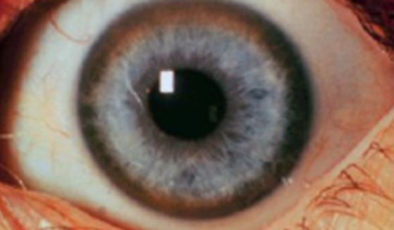 This shows Kayser-Fleischer rings in the eyes of a patient who has been diagnosed with advanced neuropsychiatric Wilson's disease.